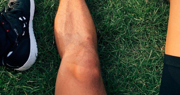 Verschillende soorten knieproblemen